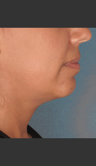 Before Photo for Kybella Treatment 34 Year Old Female -  - Prejuvenation