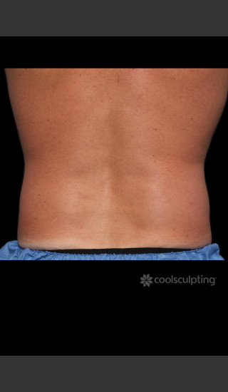 After Photo for CoolSculpting Before & After on Man -  - Prejuvenation