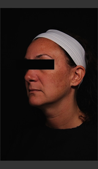 Before Photo for Treatment of Melasma -  - Prejuvenation