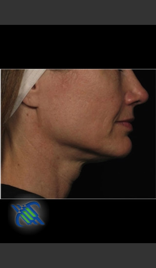 Before Photo for Profound Treatment of Lower Facial Laxity - Roy G. Geronemus, M.D. - Prejuvenation
