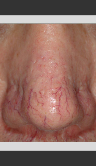 Before Photo for Gentle Laser Vascular Lesions of the Nose -  - Prejuvenation
