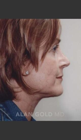 After Photo for Rhytidectomy (Facelift) 120 Side View - Alan Gold MD - Prejuvenation
