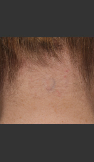 After Photo for Treatment of Neck Tattoo - Roy G. Geronemus, M.D. - Prejuvenation