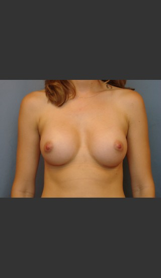 After Photo for Breast Augmentation - Michael S. Beckenstein, MD - Prejuvenation