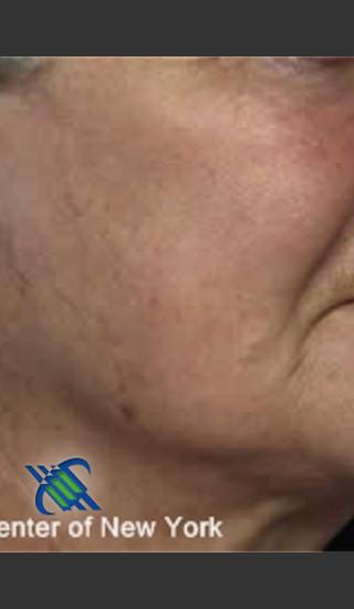 After Photo for Treatment of Cheek Pigmentation - Roy G. Geronemus, M.D. - Prejuvenation