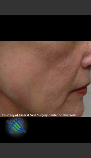 After Photo for Facial Blood Vessels on Side of Face - Roy G. Geronemus, M.D. - Prejuvenation