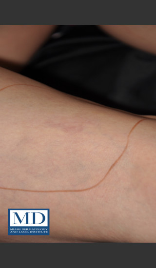After Photo for Sclerotherapy Treatment 138 - Jill S. Waibel, MD - Prejuvenation