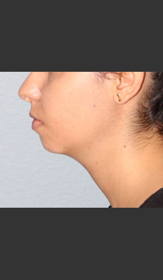 Before Photo for Chin Augmentation - Bryan J. Correa, MD - Prejuvenation