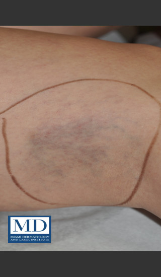 Before Photo for Sclerotherapy Treatment 138 - Jill S. Waibel, MD - Prejuvenation