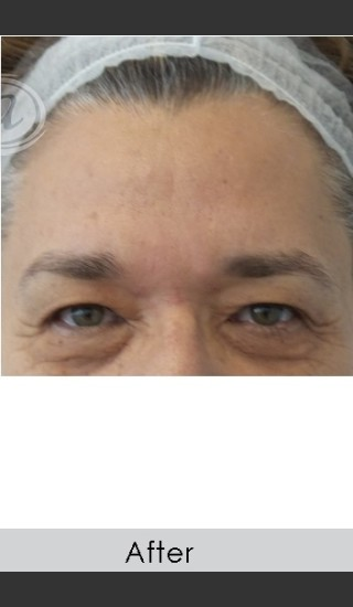 After Photo for Dysport and Filler for Forehead Etched Lines - Annie Chiu, MD - Prejuvenation