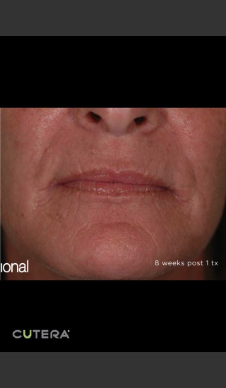 After Photo for Pearl Fusion Resurfacing of Wrinkles -  - Prejuvenation
