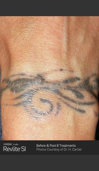 Before Photo for Revlite SI laser Tattoo Removal -  - Prejuvenation