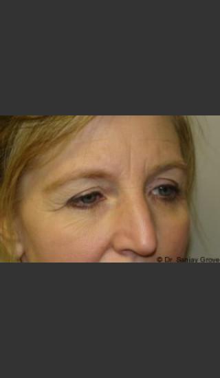 Before Photo for Blepharoplasty 6307 - Sanjay Grover MD FACS - Prejuvenation