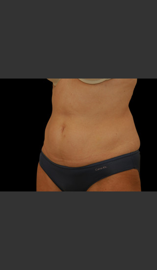 Before Photo for Body Contouring Treatment #111 -  - Prejuvenation