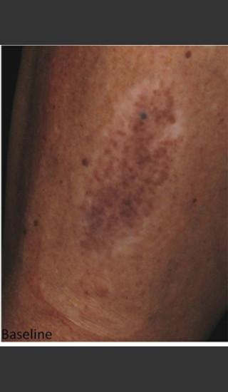 Before Photo for Treatment of Tattoo -  - Prejuvenation