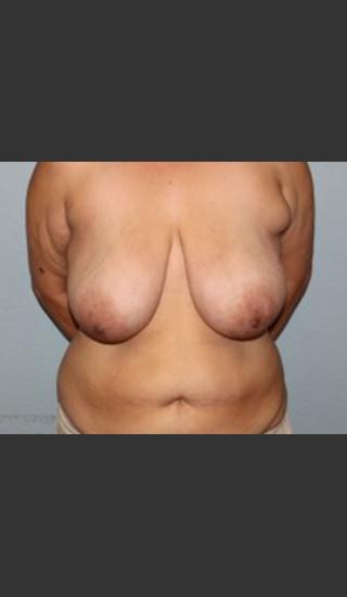 Before Photo for Breast Lift Case #1 - Bryan J. Correa, MD - Prejuvenation