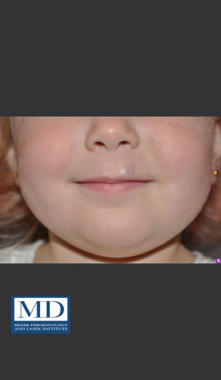 After Photo for Hemangioma Treatment 107 - Jill S. Waibel, MD - Prejuvenation