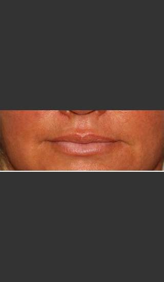 After Photo for Lip Plumping Treatment - William F. Groff, M.D. - Prejuvenation