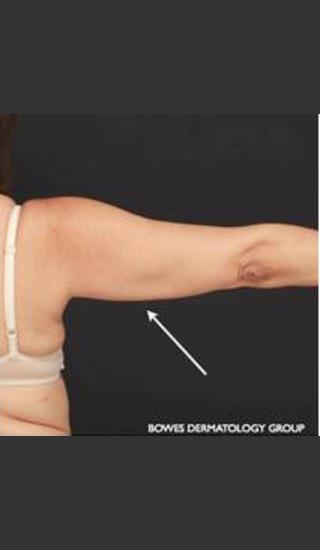 After Photo for CoolSculpting on Woman's Upper Arm - Leyda Elizabeth Bowes, M.D. - Prejuvenation