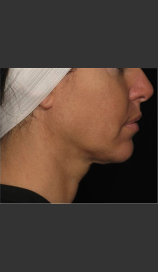 After Photo for Treatment of Neck with Laser Liposuction -  - Prejuvenation