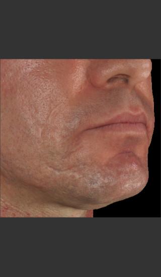 After Photo for Infini Acne Scar Treatment #13 -  - Prejuvenation