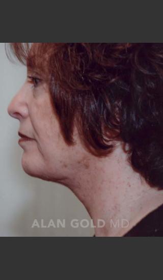 After Photo for Liposuction of Neck 89 Side View - Alan Gold MD - Prejuvenation