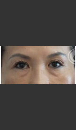 Before Photo for Undereye Filler - Annie Chiu, MD - Prejuvenation