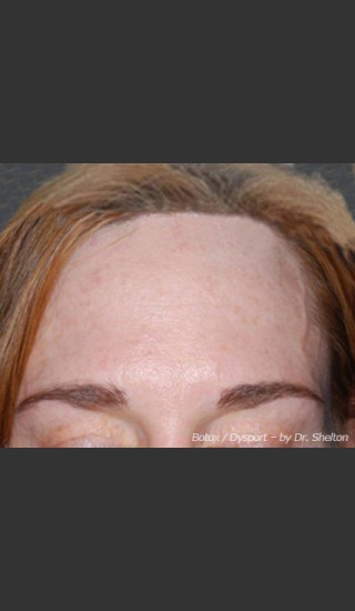 After Photo for Treatment of Forehead Creases - Ron M. Shelton, M.D. - Prejuvenation