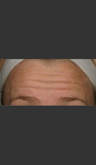 Before Photo for Treatment of Forehead Wrinkles with Botox - Roy G. Geronemus, M.D. - Prejuvenation