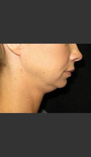 Before Photo for Laser Asissted Liposuction - Robert Aycock - Prejuvenation
