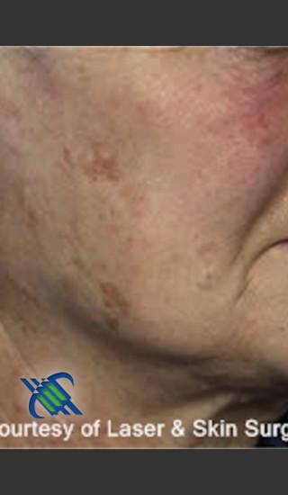 Before Photo for Treatment of Cheek Pigmentation - Roy G. Geronemus, M.D. - Prejuvenation