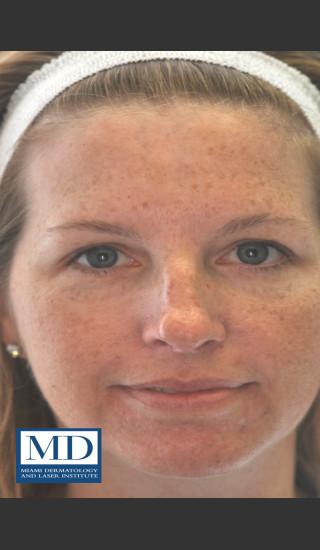 Before Photo for IPL Brown Spots Treatment 109 - Jill S. Waibel, MD - Prejuvenation