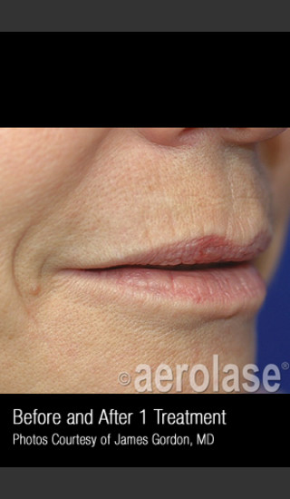 After Photo for Treatment of Smoke Wrinkles #340 -  - Prejuvenation