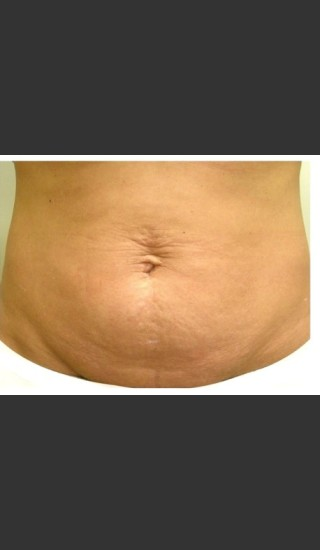 Before Photo for 3DEEP Belly Tightening -  - Prejuvenation