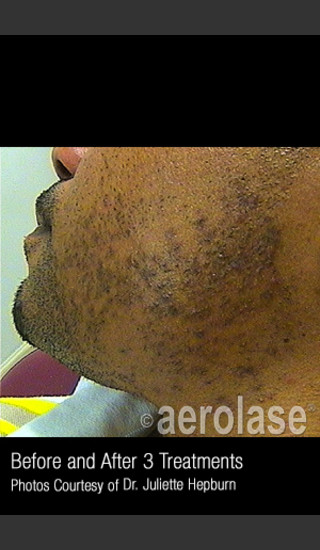 Before Photo for Hair Removal #314 -  - Prejuvenation