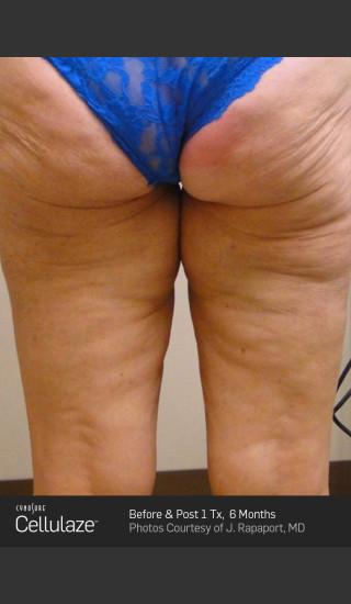 After Photo for Cellulaze Cellulite Treatment -  - Prejuvenation