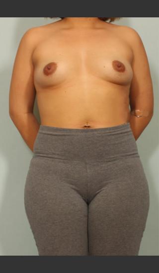 Before Photo for Breast Augmentation - El Paso Cosmetic Surgery - Prejuvenation