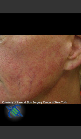 Before Photo for Treatment of Facial Blood Vessels - Roy G. Geronemus, M.D. - Prejuvenation