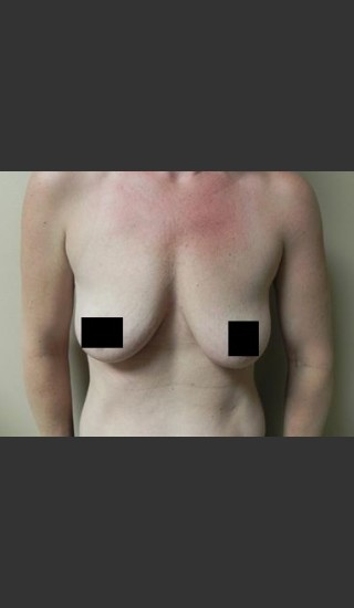 Before Photo for Breast Augmentation - Brian P. Tierney, MD - Prejuvenation