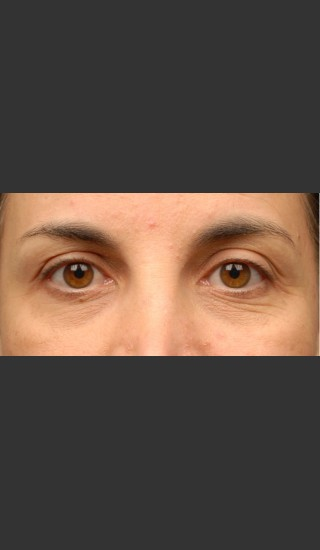 Before Photo for 3DEEP Eye Wrinkle Reduction -  - Prejuvenation