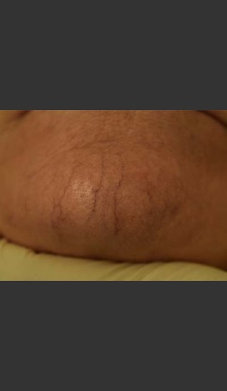 Before Photo for Cutera Laser Treatment - Skin Cancer Specialists P.C. & Aesthetic Center - Prejuvenation