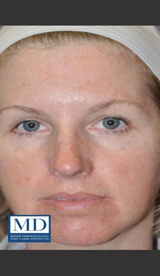 After Photo for IPL Brown Spots Treatment 109 - Jill S. Waibel, MD - Prejuvenation