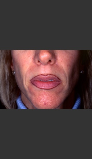 Before Photo for Treatment of Permanent Lip Liner - Roy G. Geronemus, M.D. - Prejuvenation