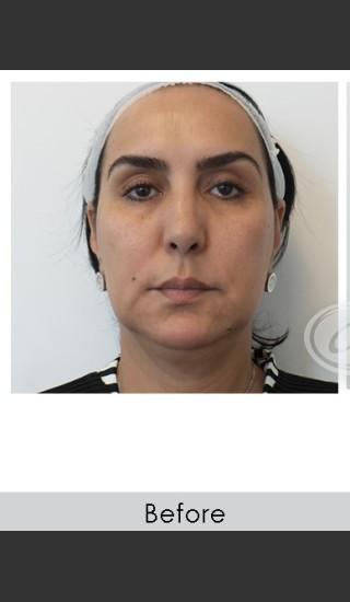Before Photo for Liquid Face Lift - Annie Chiu, MD - Prejuvenation