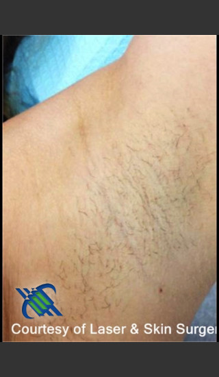 Before Photo for Hair Removal of Female Under Arms - Roy G. Geronemus, M.D. - Prejuvenation
