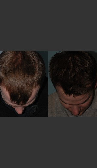 After Photo for Neograft Hair Transplant - Mark B. Taylor, M.D. - Prejuvenation