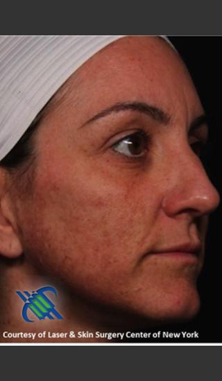 Before Photo for Right Side Full Face Rejuvenation - Roy G. Geronemus, M.D. - Prejuvenation