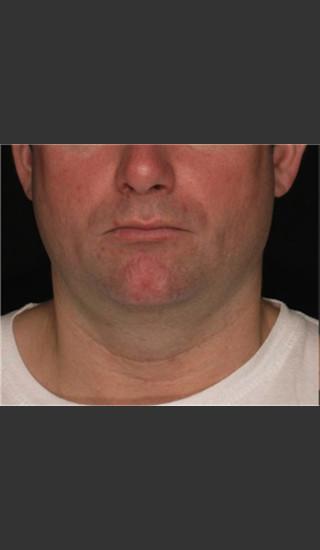 Before Photo for Treatment of Neck Contour -  - Prejuvenation