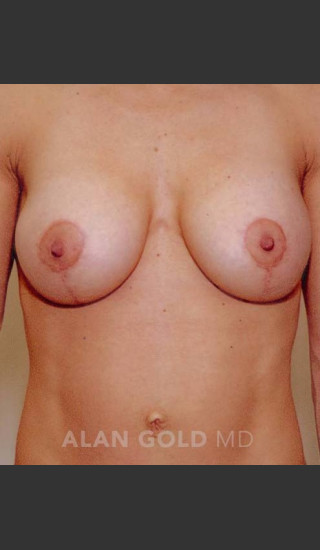 After Photo for Mastopexy and Augmentation 515 - Alan Gold MD - Prejuvenation