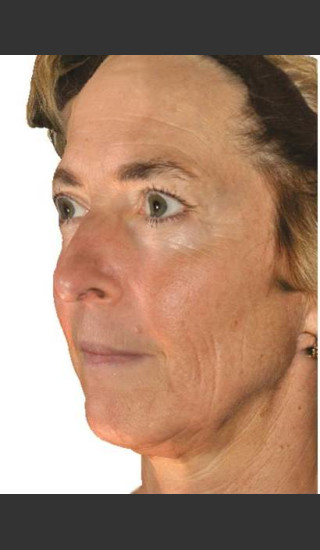 Before Photo for Infini Facial Laxity and Rhytides Treatment -  - Prejuvenation